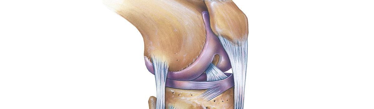Ο προσθιοπλάγιος σύνδεσμος (anterolateral ligament) του γόνατος  και η σημασία του στην συνδεσμοπλαστική του προσθίου χιαστού